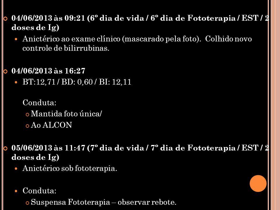 04/06/2013 às 09:21 (6º dia de vida / 6º dia de Fototerapia / EST / 2 doses de Ig)