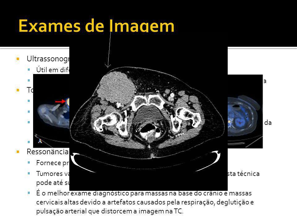 Exames de Imagem Ultrassonografia Tomografia Computadorizada