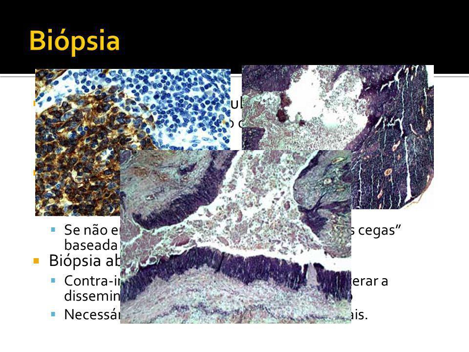 Biópsia Punção Aspirativa por Agulha Fina (PAAF)