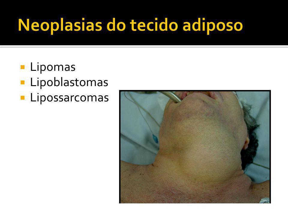 Neoplasias do tecido adiposo