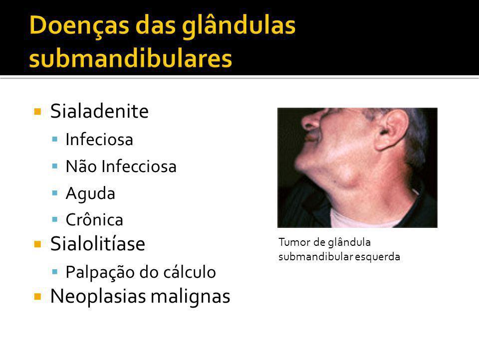 Doenças das glândulas submandibulares