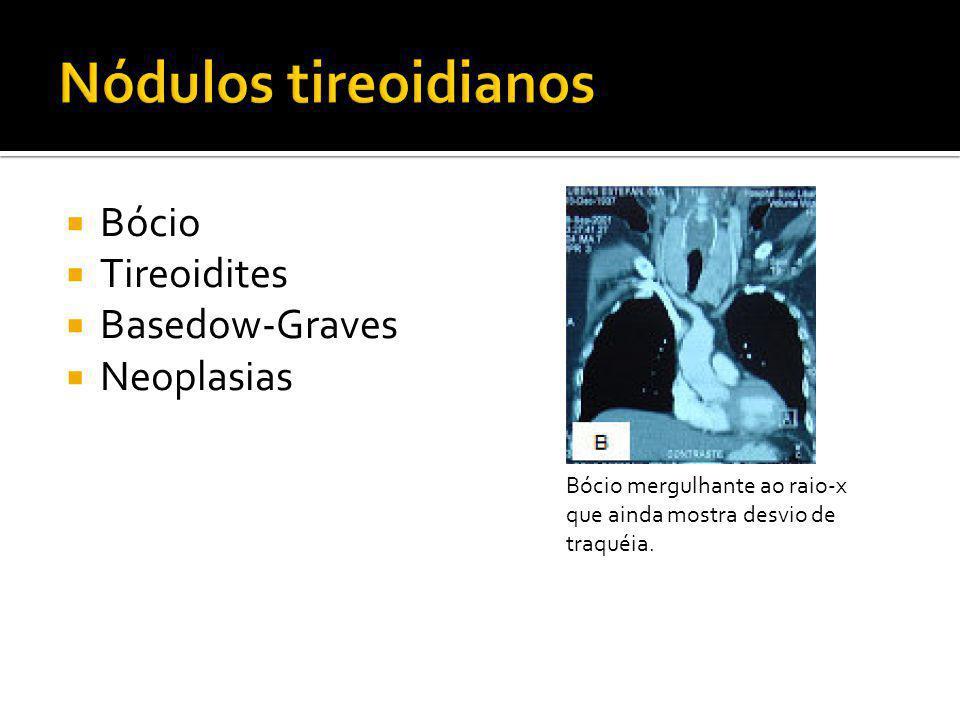Nódulos tireoidianos Bócio Tireoidites Basedow-Graves Neoplasias