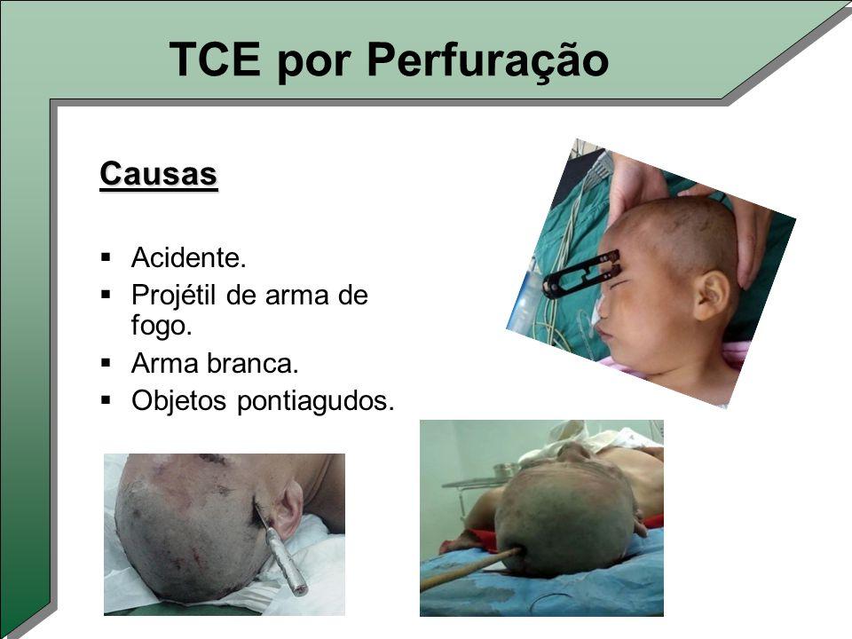 TCE por Perfuração Causas Acidente. Projétil de arma de fogo.