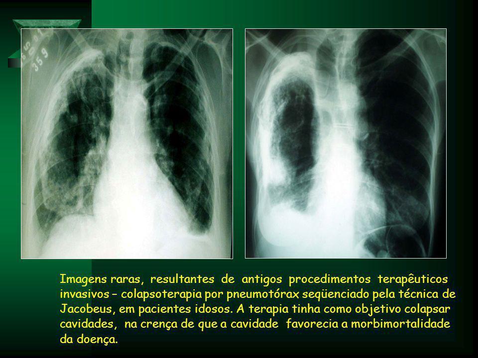 Imagens raras, resultantes de antigos procedimentos terapêuticos