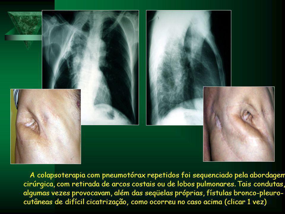A colapsoterapia com pneumotórax repetidos foi sequenciado pela abordagem