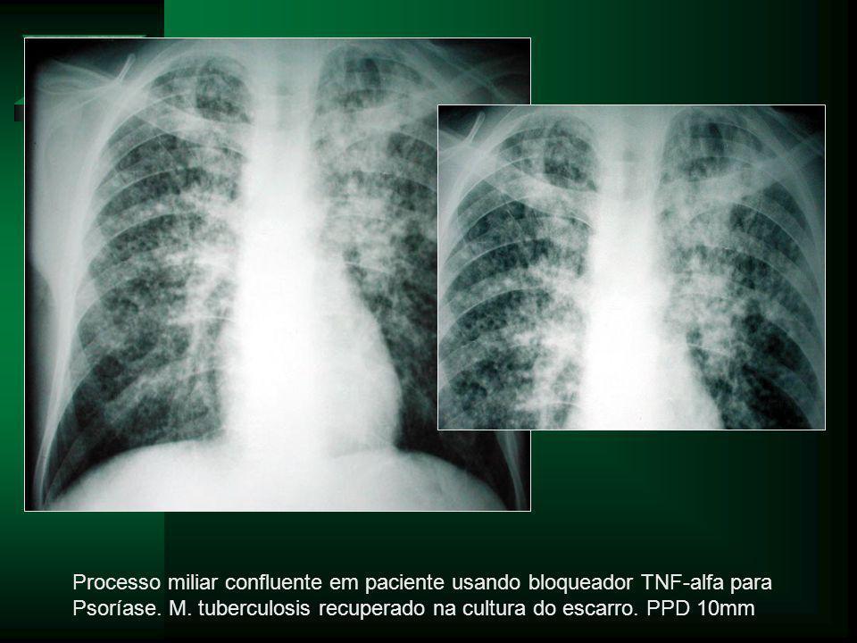 Processo miliar confluente em paciente usando bloqueador TNF-alfa para