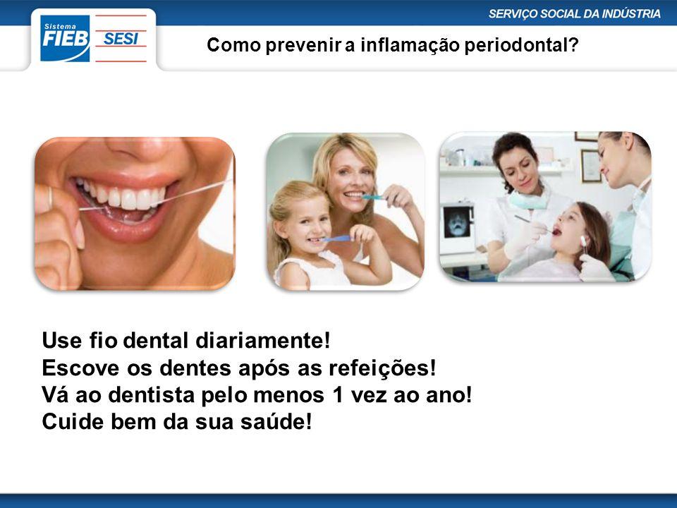 Use fio dental diariamente! Escove os dentes após as refeições!