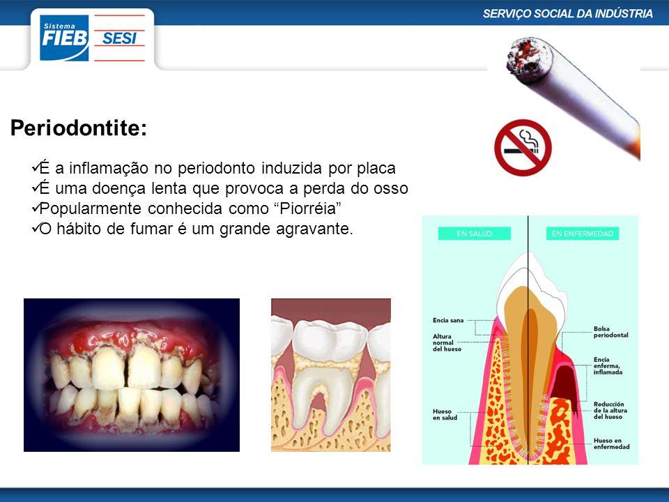 Periodontite: É a inflamação no periodonto induzida por placa