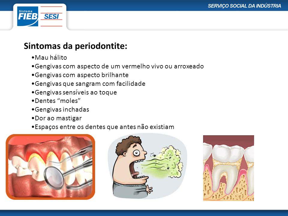 Sintomas da periodontite: