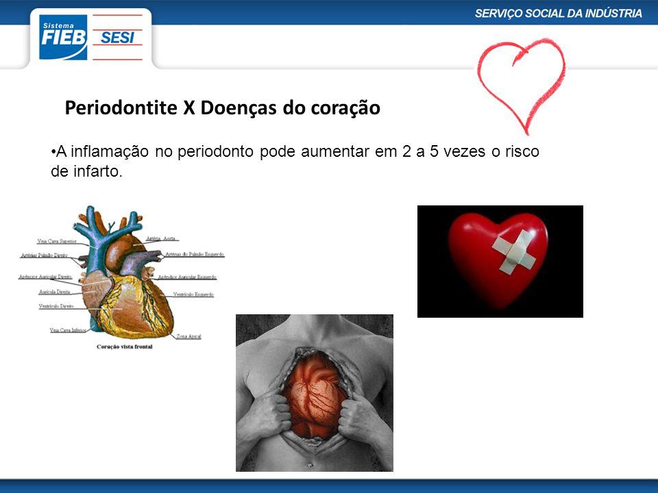 Periodontite X Doenças do coração