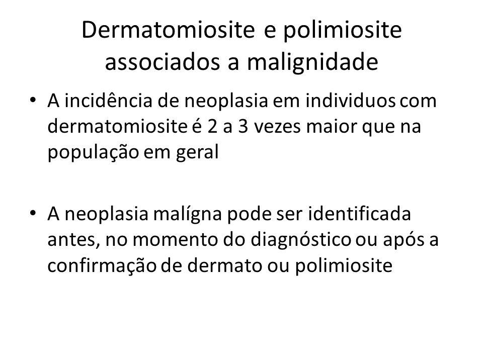 Dermatomiosite e polimiosite associados a malignidade