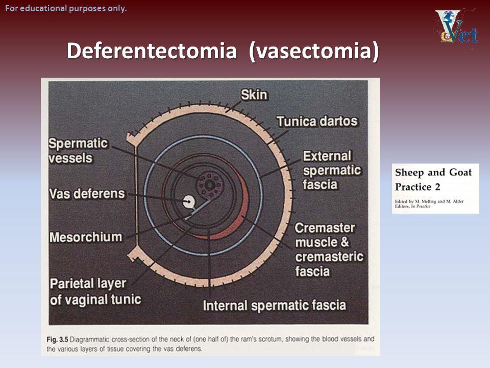 Deferentectomia (vasectomia)