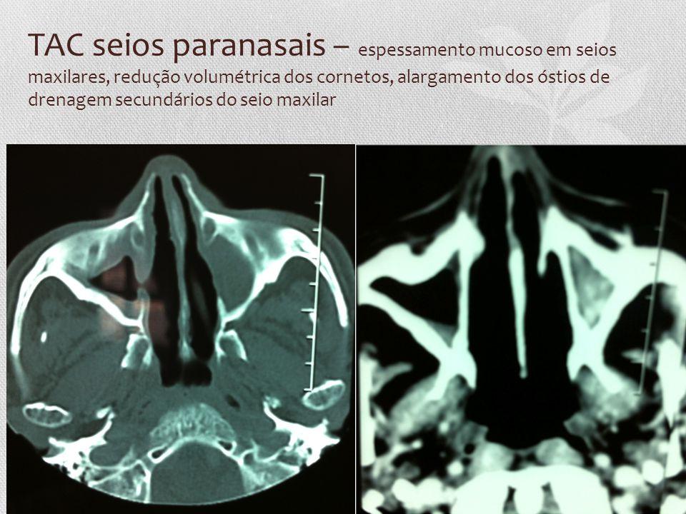 TAC seios paranasais – espessamento mucoso em seios maxilares, redução volumétrica dos cornetos, alargamento dos óstios de drenagem secundários do seio maxilar