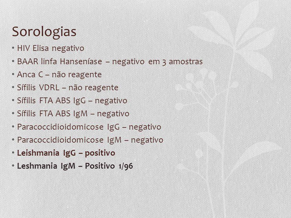 Sorologias HIV Elisa negativo