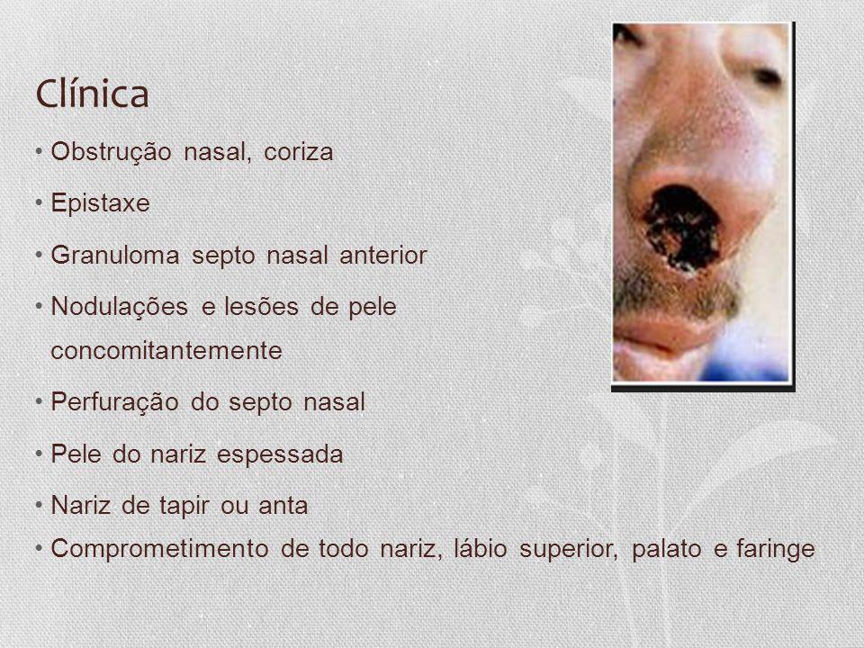 Clínica Obstrução nasal, coriza Epistaxe