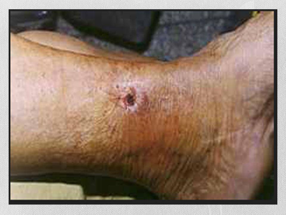 Figura ulceras