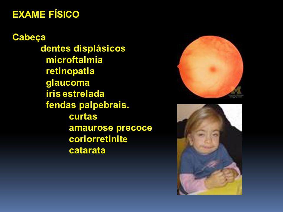 EXAME FÍSICO Cabeça. dentes displásicos. microftalmia. retinopatia. glaucoma. íris estrelada. fendas palpebrais.