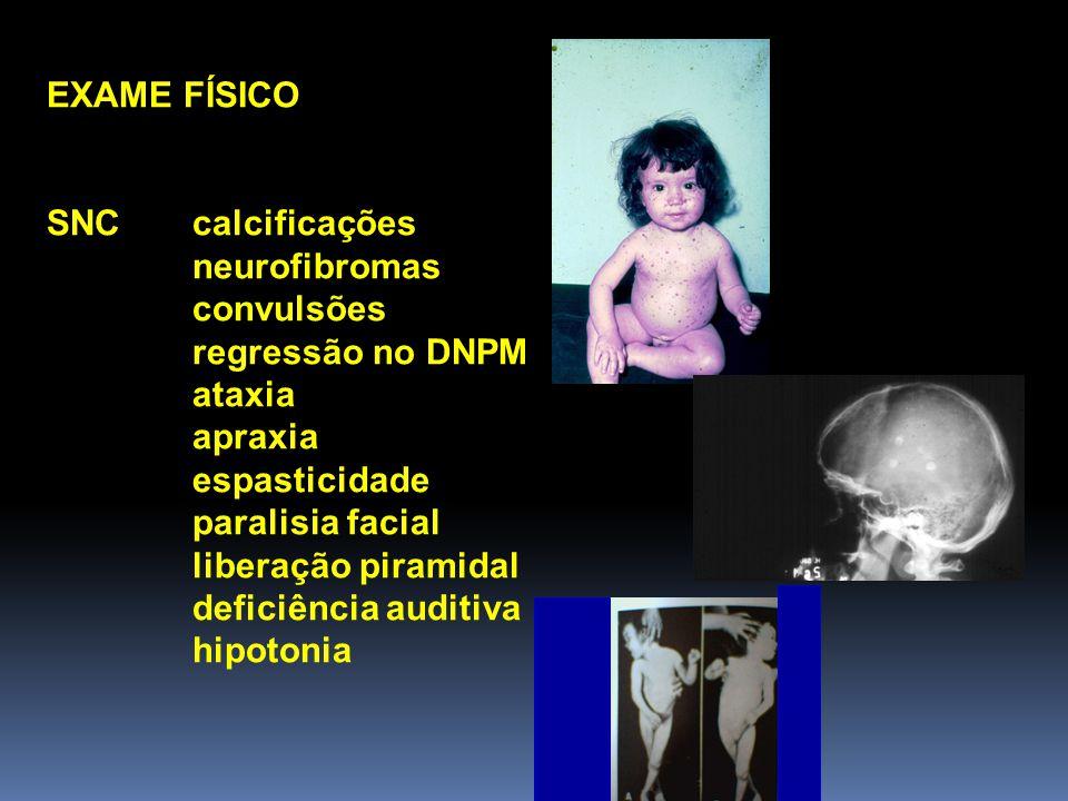 EXAME FÍSICO SNC calcificações. neurofibromas. convulsões. regressão no DNPM. ataxia. apraxia.