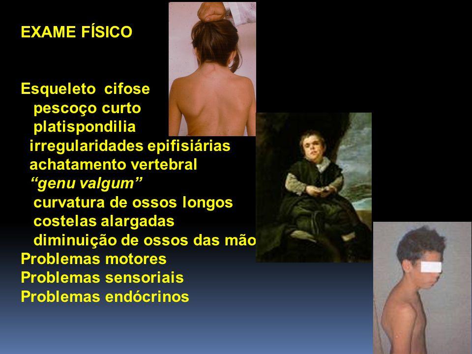 EXAME FÍSICO Esqueleto cifose. pescoço curto. platispondilia. irregularidades epifisiárias. achatamento vertebral.
