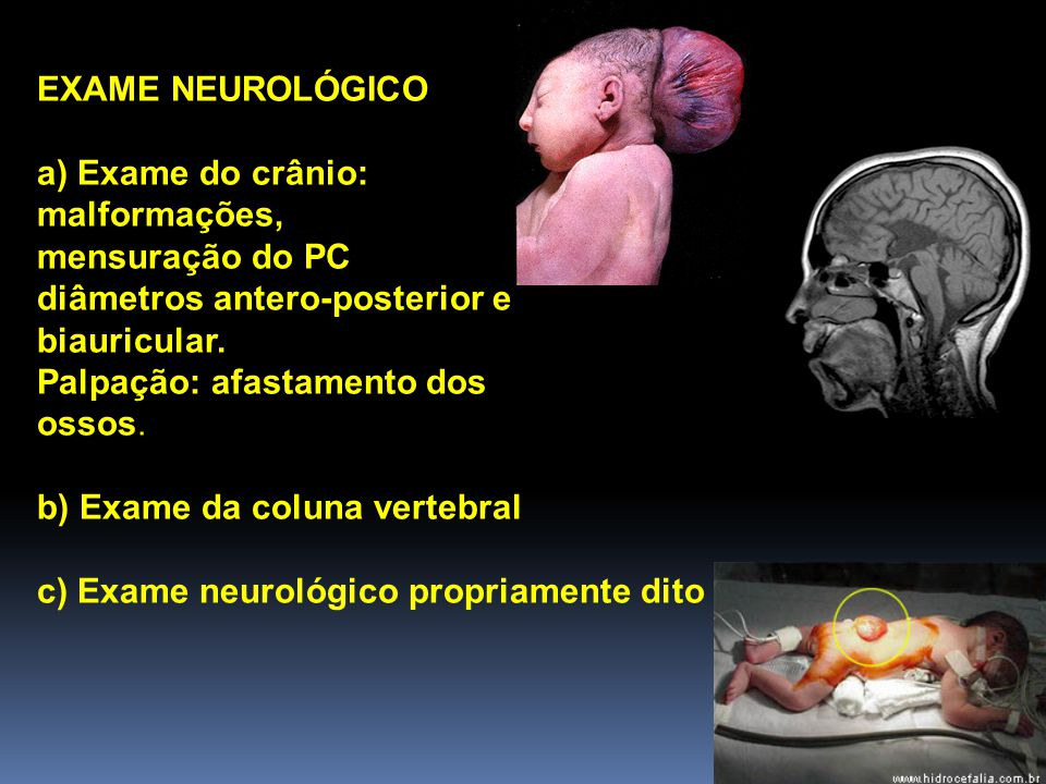 EXAME NEUROLÓGICO a) Exame do crânio: malformações, mensuração do PC. diâmetros antero-posterior e.