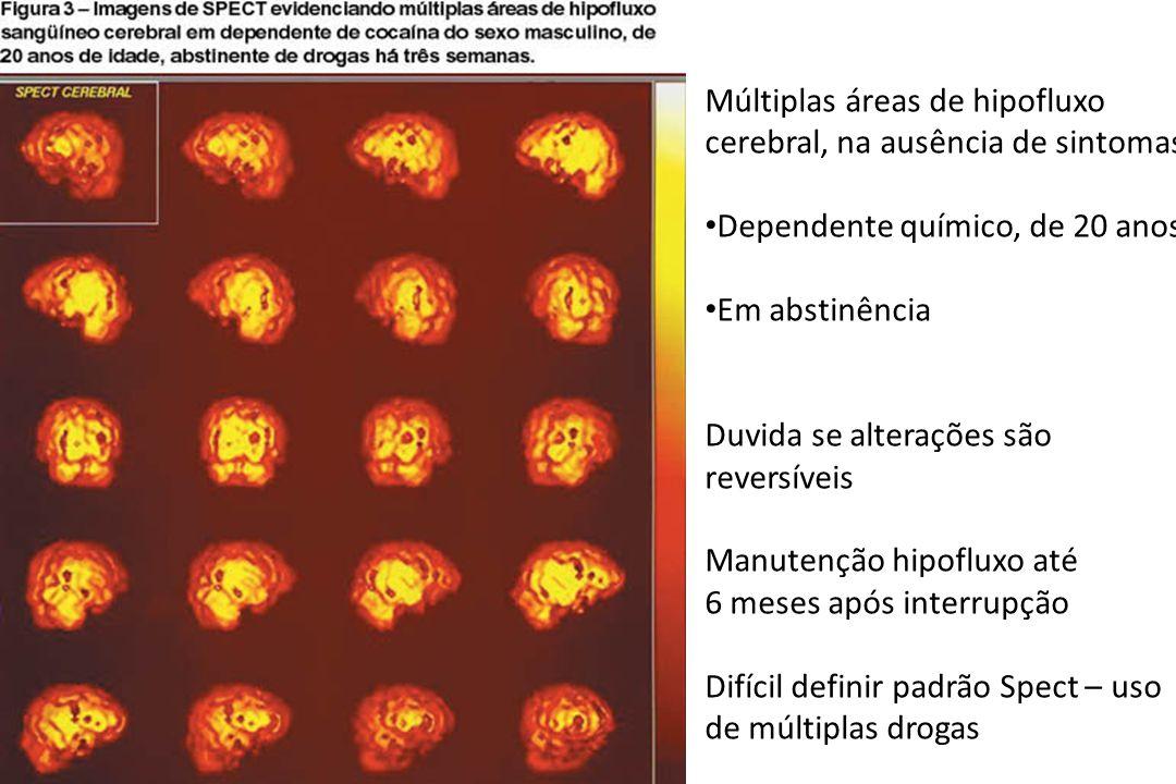 Múltiplas áreas de hipofluxo