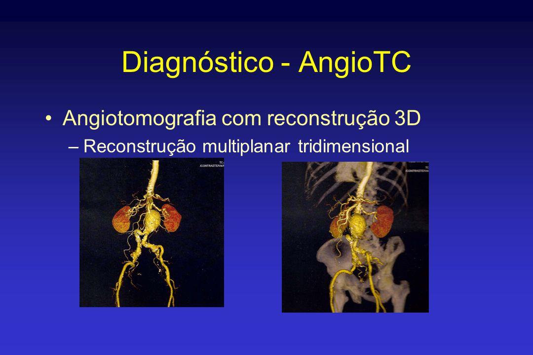 Diagnóstico - AngioTC Angiotomografia com reconstrução 3D