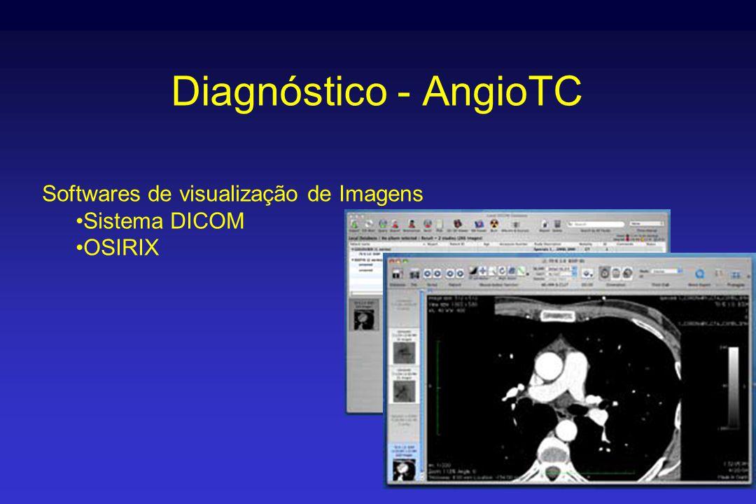 Diagnóstico - AngioTC Softwares de visualização de Imagens