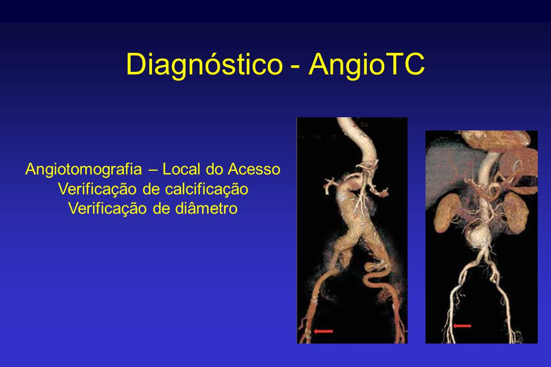 Diagnóstico - AngioTC Angiotomografia – Local do Acesso