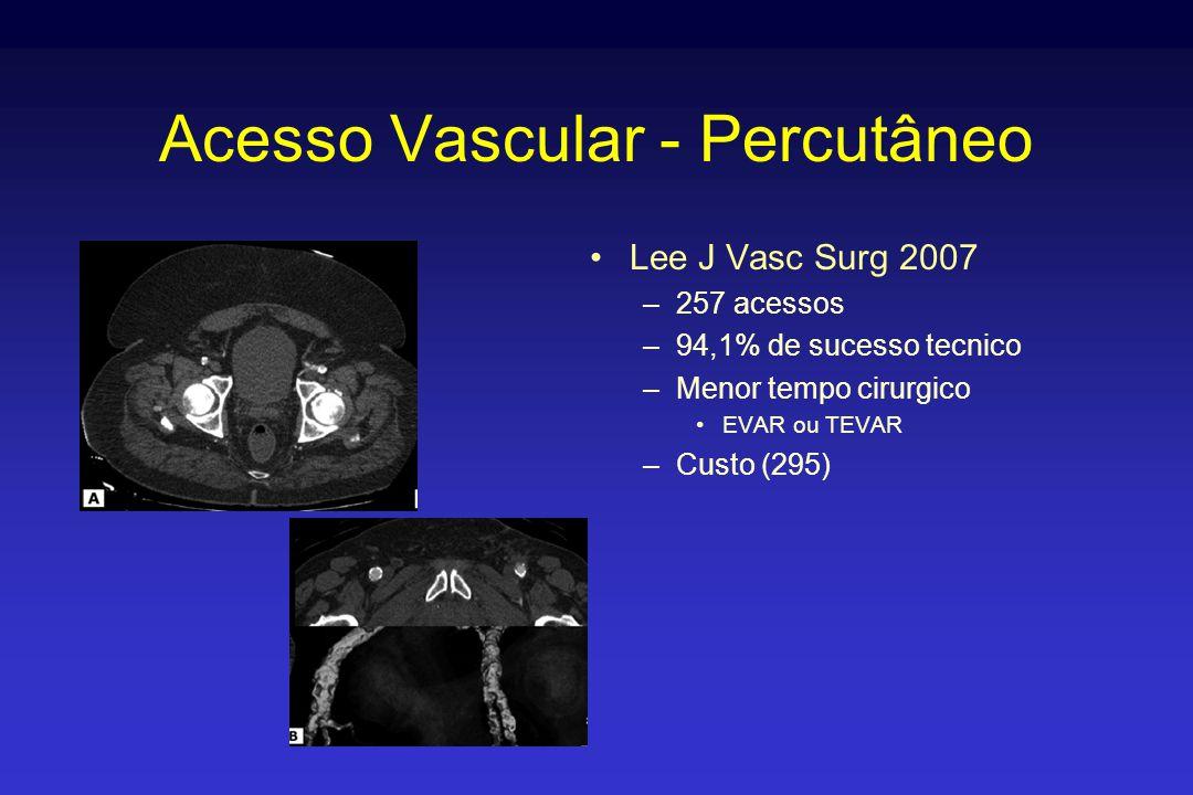Acesso Vascular - Percutâneo