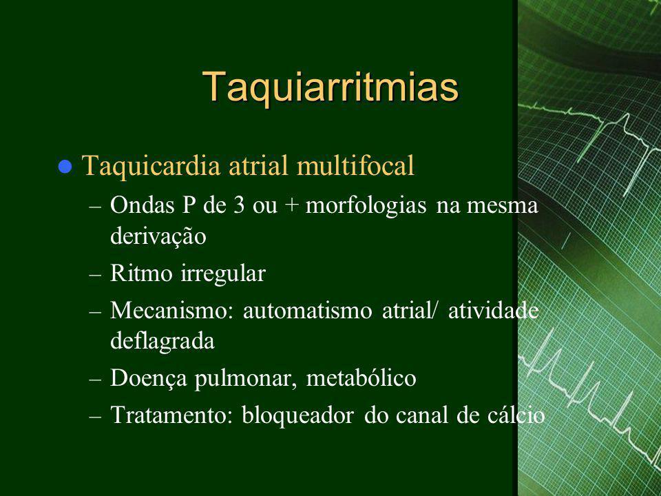 Taquiarritmias Taquicardia atrial multifocal