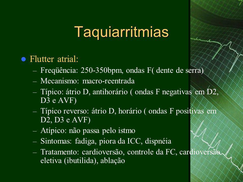 Taquiarritmias Flutter atrial: