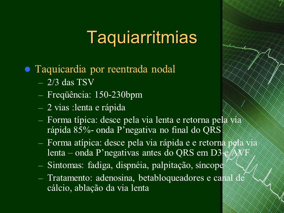 Taquiarritmias Taquicardia por reentrada nodal 2/3 das TSV