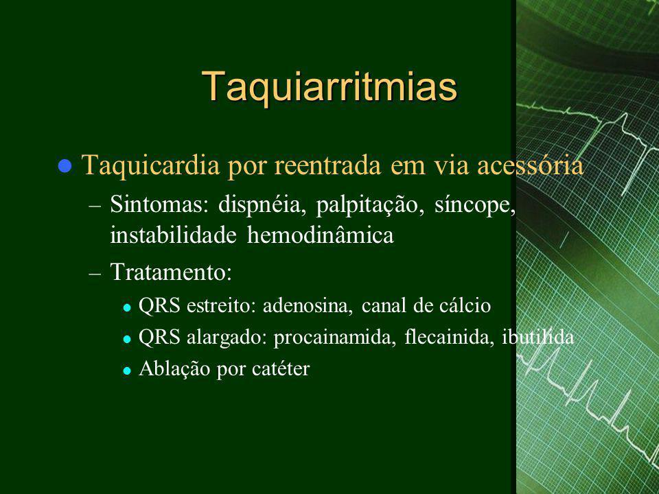 Taquiarritmias Taquicardia por reentrada em via acessória