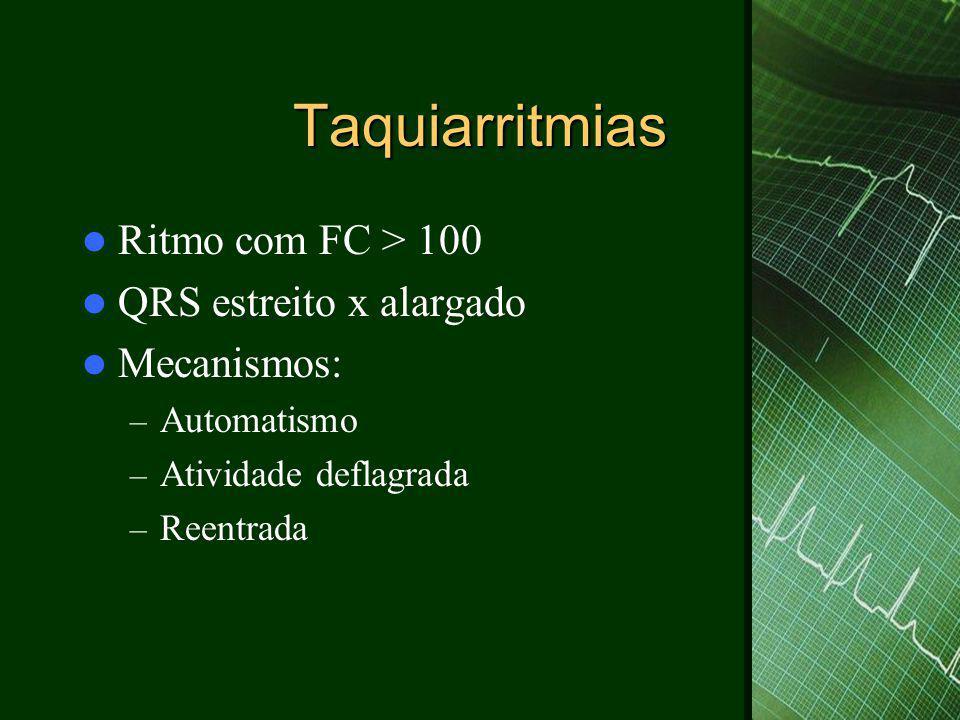 Taquiarritmias Ritmo com FC > 100 QRS estreito x alargado