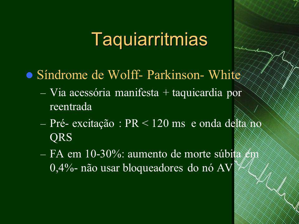 Taquiarritmias Síndrome de Wolff- Parkinson- White