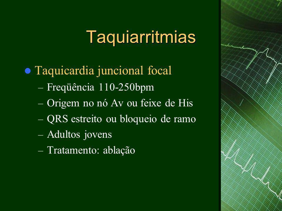Taquiarritmias Taquicardia juncional focal Freqüência 110-250bpm