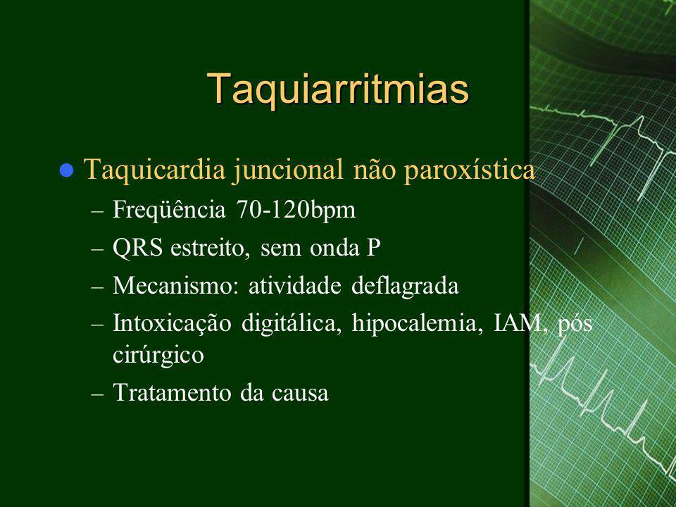 Taquiarritmias Taquicardia juncional não paroxística