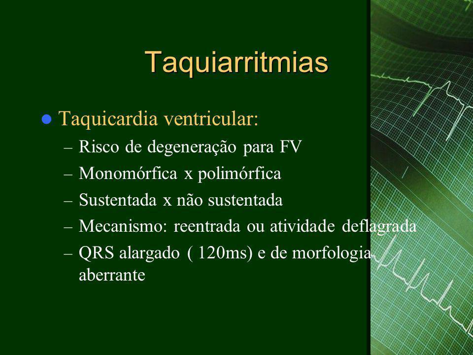 Taquiarritmias Taquicardia ventricular: Risco de degeneração para FV