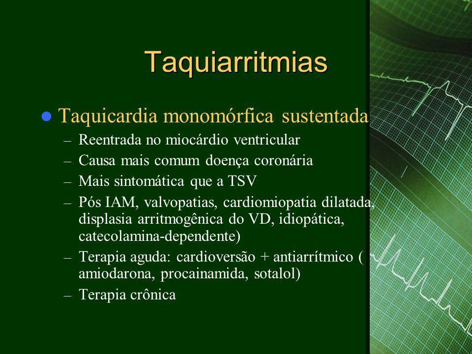 Taquiarritmias Taquicardia monomórfica sustentada