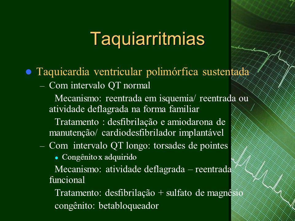 Taquiarritmias Taquicardia ventricular polimórfica sustentada