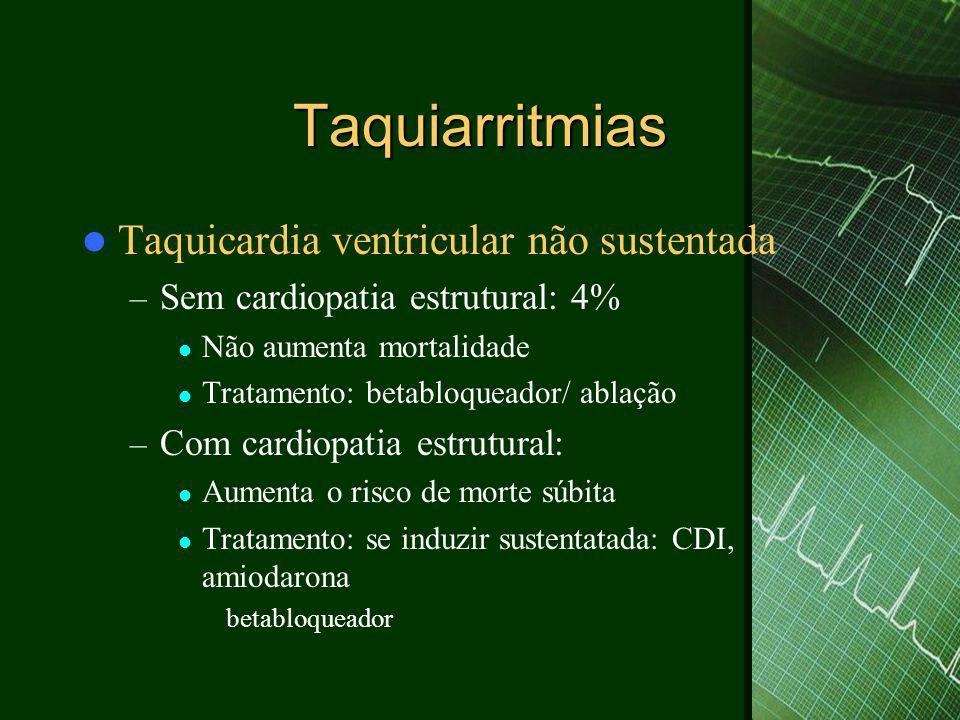 Taquiarritmias Taquicardia ventricular não sustentada
