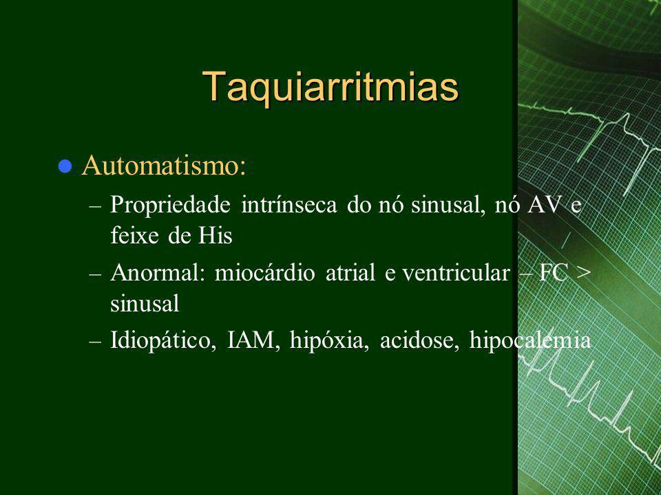 Taquiarritmias Automatismo: