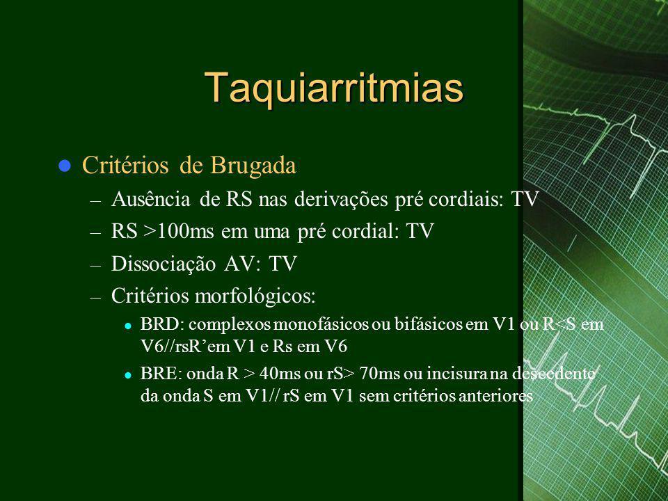 Taquiarritmias Critérios de Brugada