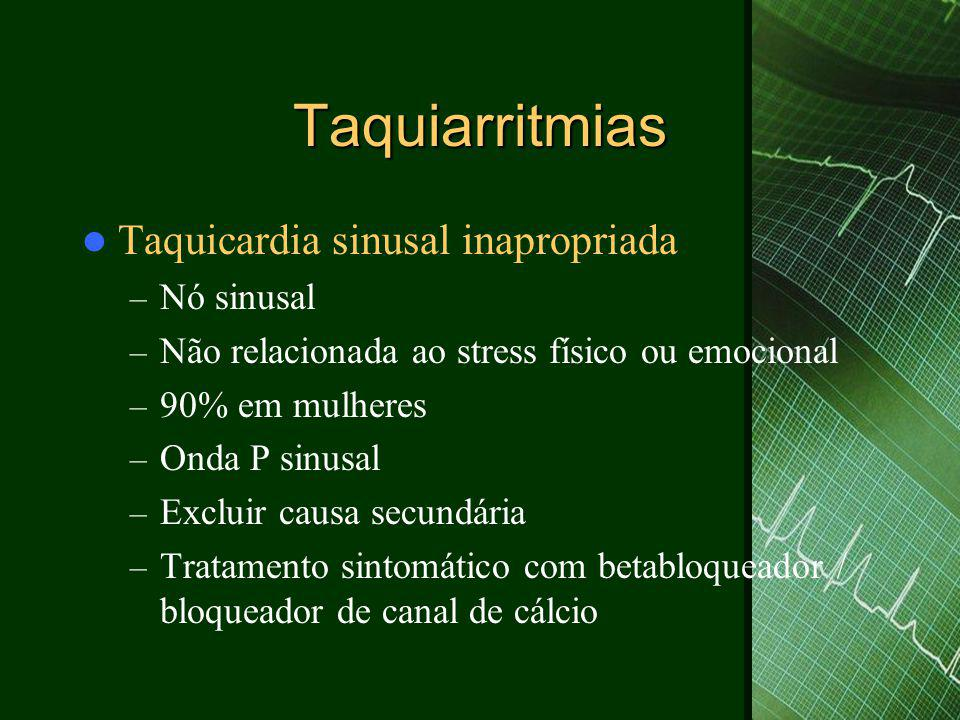 Taquiarritmias Taquicardia sinusal inapropriada Nó sinusal