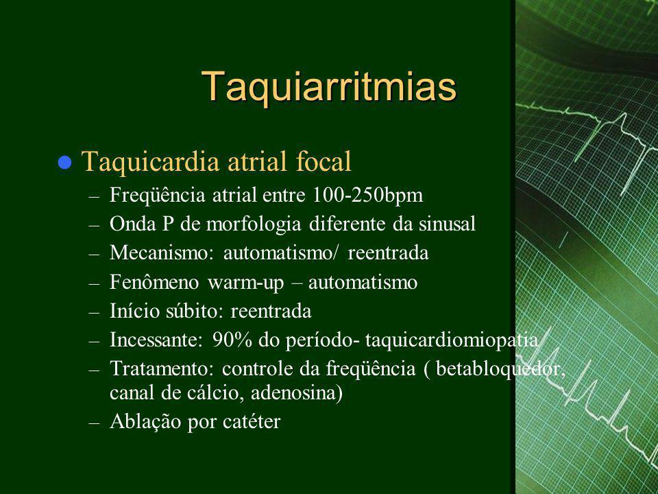 Taquiarritmias Taquicardia atrial focal