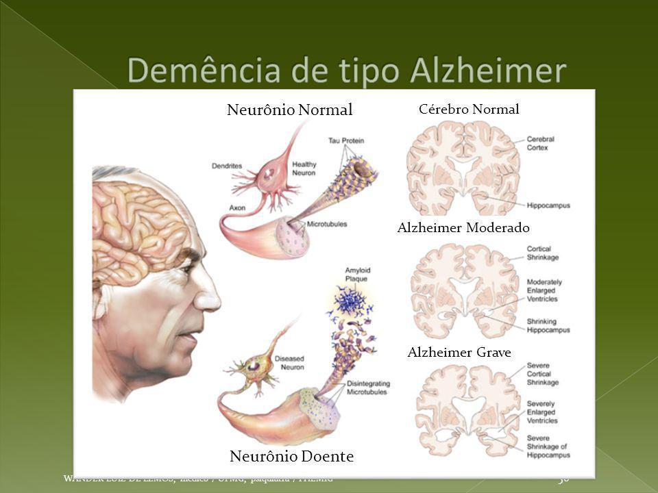 Demência de tipo Alzheimer