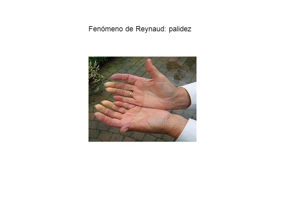 Fenómeno de Reynaud: palidez
