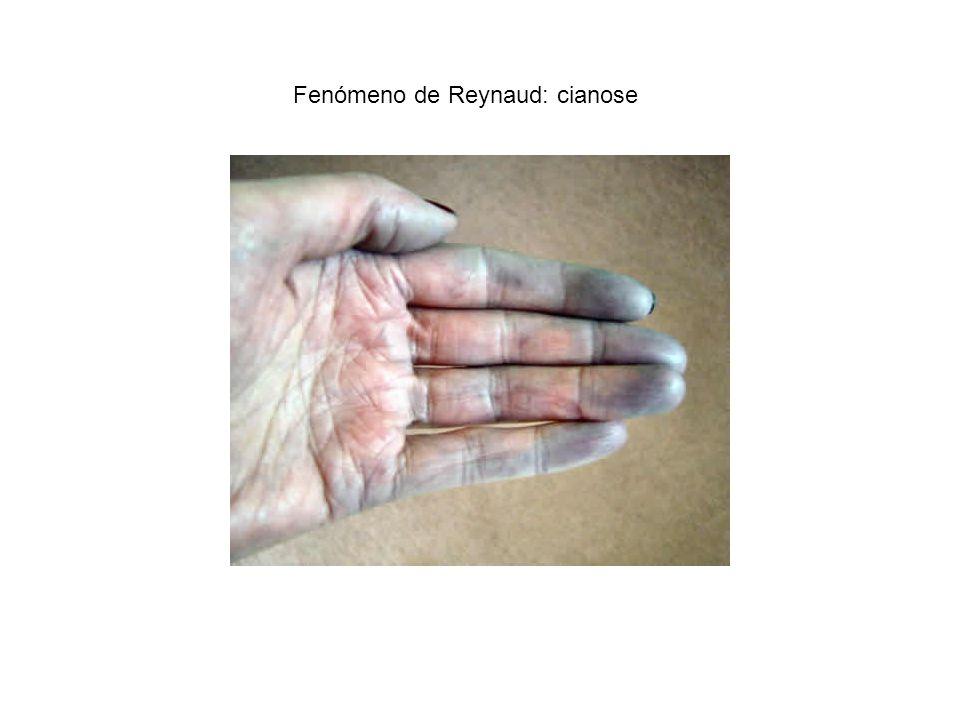 Fenómeno de Reynaud: cianose