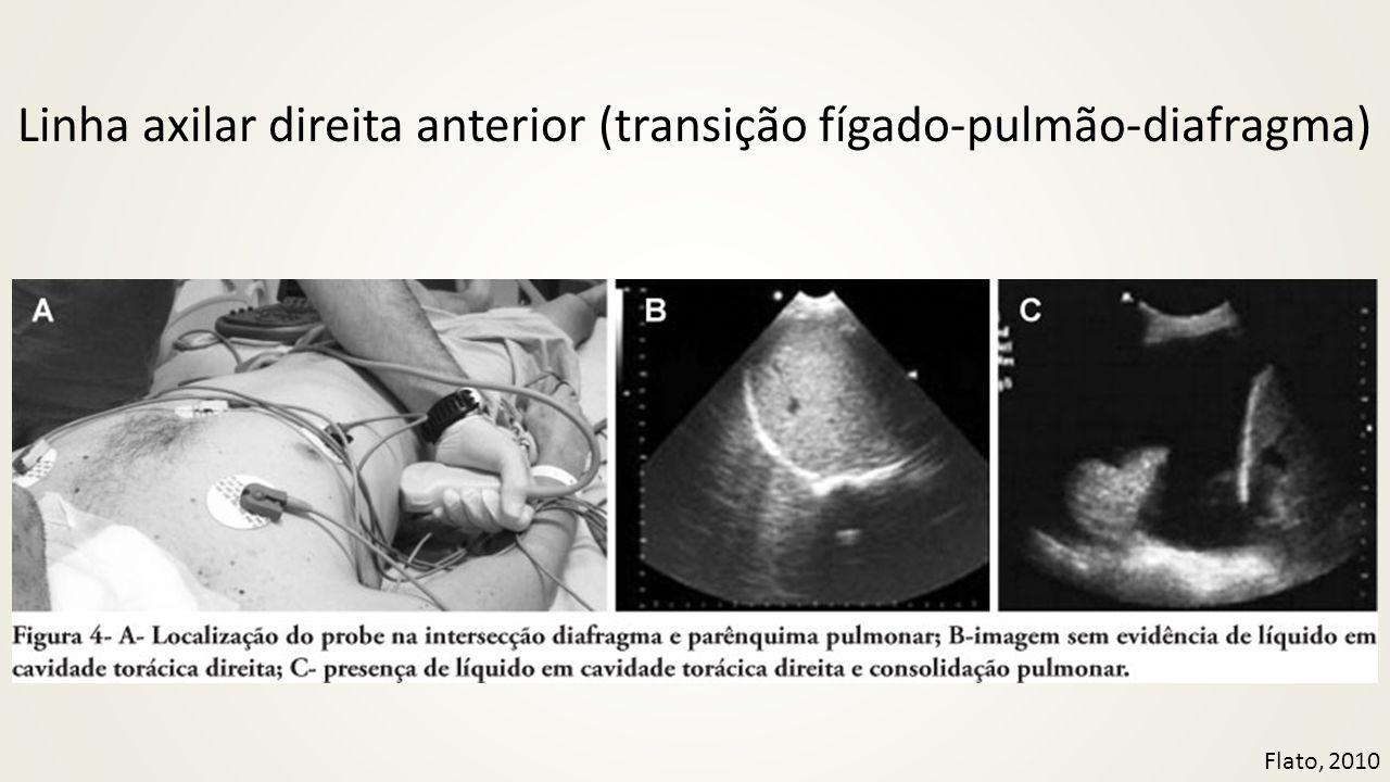 Linha axilar direita anterior (transição fígado-pulmão-diafragma)