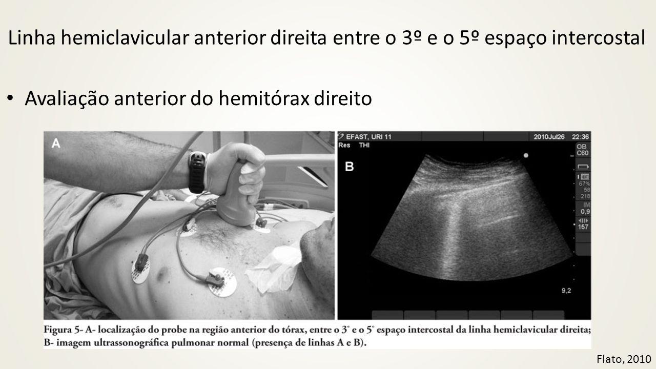 Avaliação anterior do hemitórax direito